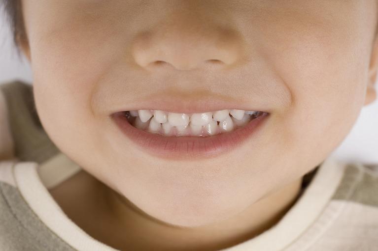 先天的に歯の数が少ない「先天性欠如歯」