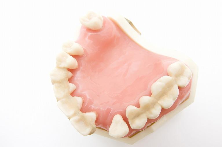 インプラント、義歯、ブリッジなど、複数の選択肢をご用意