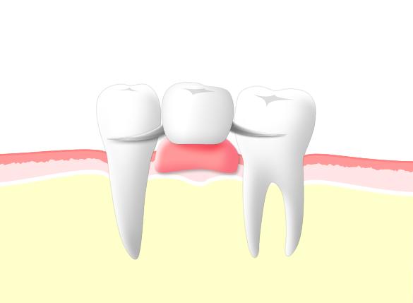 当院では精密義歯を使用